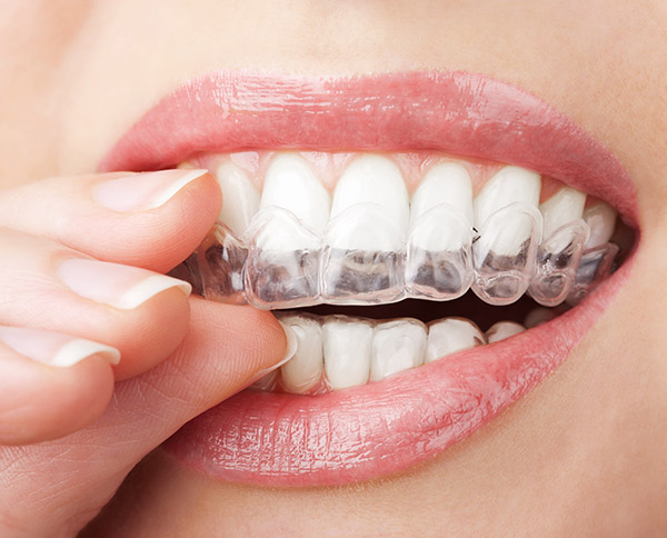 Who Is A Candidate For Invisalign®?